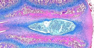 Intervertebral Disc Poster by Microscape