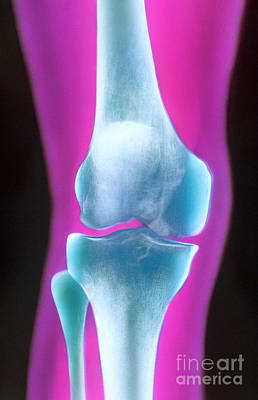 Knee X-ray Of A 72 Year Old Woman Poster