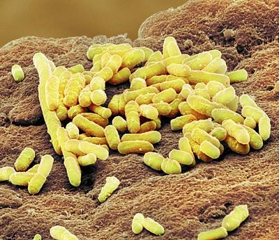 Lactobacillus Bacteria Poster by Steve Gschmeissner