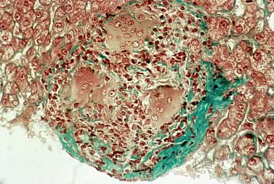 Liver Sarcoidosis Poster
