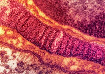 Lung Mitochondrion Poster by Ami Images
