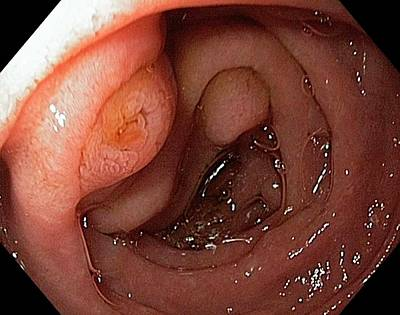 Major Duodenal Papilla Poster by Gastrolab