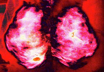 Mammogram Poster by Larry Berman