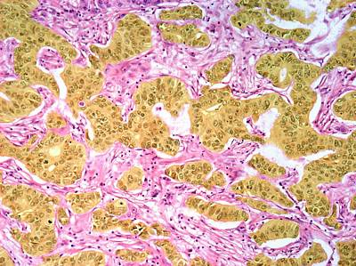 Medullary Breast Cancer Poster