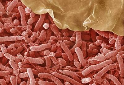Nitrogen Fixing Bacteria Poster
