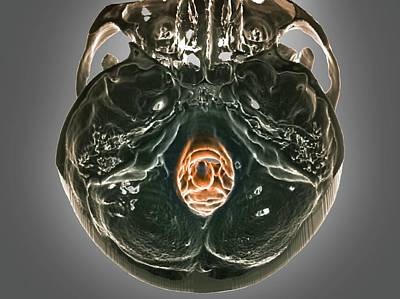 Normal Skull Poster by Zephyr