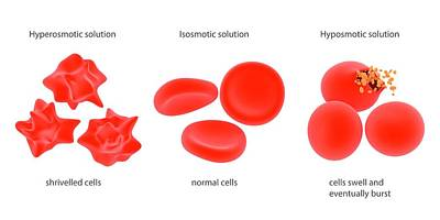 Osmosis In Red Blood Cells Poster by Science Photo Library