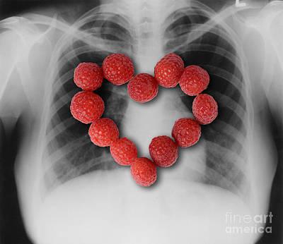 Raspberries, Heart-healthy Fruit Poster