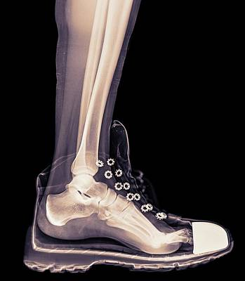 Running Shoe X-ray Poster by Photostock-israel