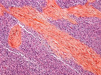 Sarcoma Poster by Steve Gschmeissner