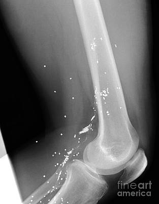 Shrapnel Injury, X-ray Poster by Du Cane Medical Imaging Ltd.