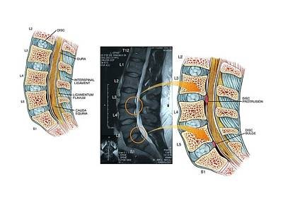 Slipped Discs In The Lumbar Spine Poster