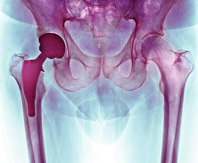 Total Hip Replacement Poster by Dr P. Marazzi