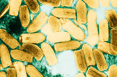 Vesicular Stomatitis Virus, Tem Poster by Science Source