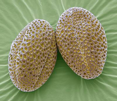 Wallflower Pollen Grains Poster by Steve Gschmeissner