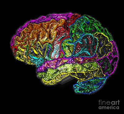 Mri Of Normal Brain Poster by Living Art Enterprises