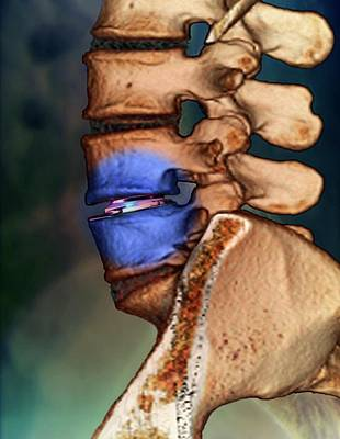 Spinal Disc Implant Poster by Zephyr