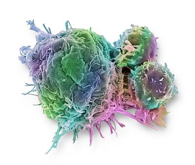 Cancer Cell And T Lymphocytes Poster