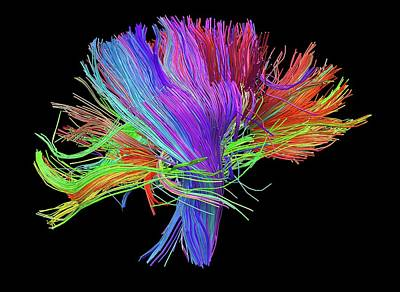 White Matter Fibres Of The Human Brain Poster by Alfred Pasieka