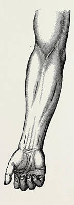 Ligature, Medical Equipment, Surgical Instrument Poster