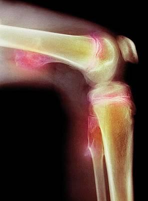 Bone Tumour Poster