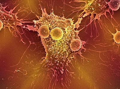Cancer Cell And T Lymphocytes Poster by Steve Gschmeissner