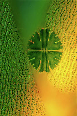Desmid On Sphagnum Moss Poster