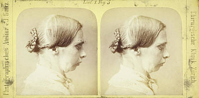 19th Century Stereoscopic Medical Images Poster by British Library