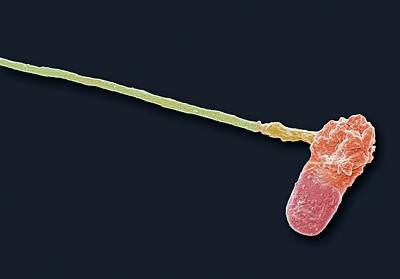 Abnormal Human Sperm Cell Poster by Steve Gschmeissner