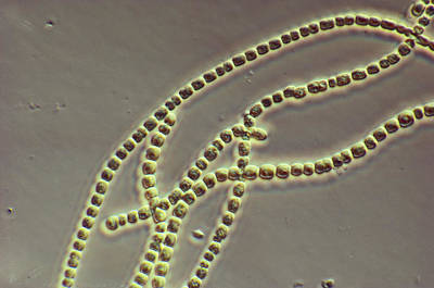Anabaena, Lm Poster by Robert Knauft / Biology Pics