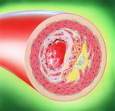 Atherosclerosis Poster by John Bavosi