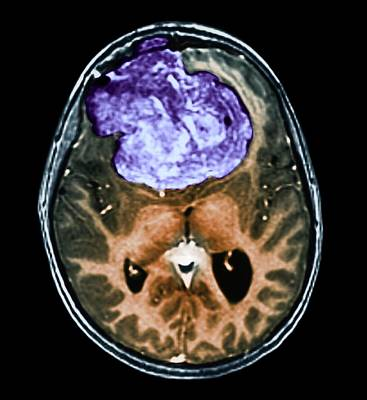 Benign Brain Tumour Poster by Zephyr