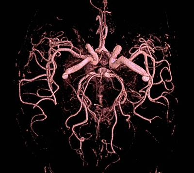 Brain Arteries Poster by Anders Persson, Cmiv