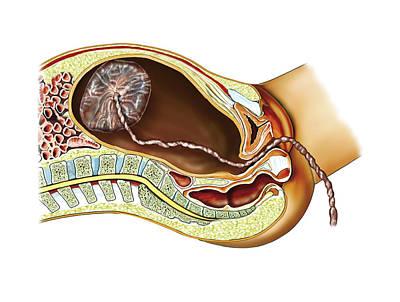 Childbirth Poster by Asklepios Medical Atlas
