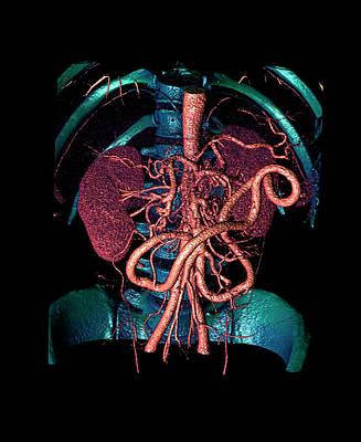 Distended Mesenteric Artery Poster