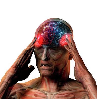 Headache Poster by Carol & Mike Werner