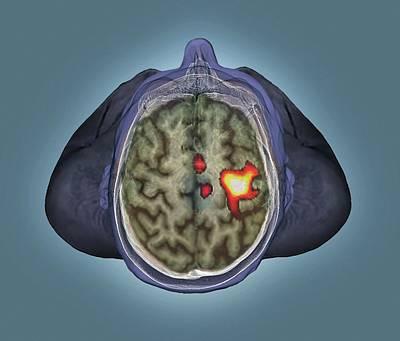 Healthy Brain Poster