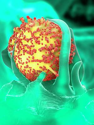 Hiv Particles And Dendritic Cell Poster by Ramon Andrade 3dciencia