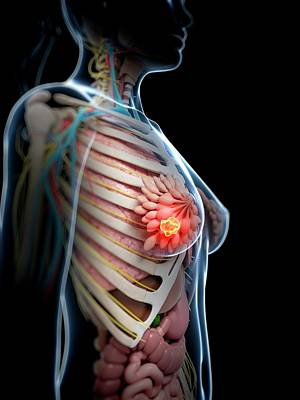 Human Breast Cancer Poster