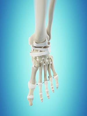 Human Foot Tendons Poster by Sciepro
