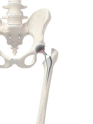 Human Hip Replacement Poster by Sebastian Kaulitzki