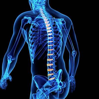Human Intervertebral Discs Poster