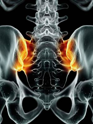 Human Sacroiliac Joint Poster by Sciepro