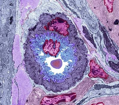 Intestinal Arteriole, Tem Poster by Science Photo Library
