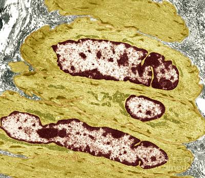 Intestinal Smooth Muscle Cells, Tem Poster