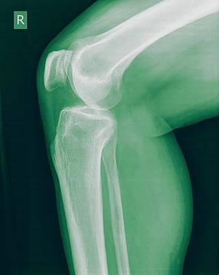 Knee X-ray Poster by Photostock-israel