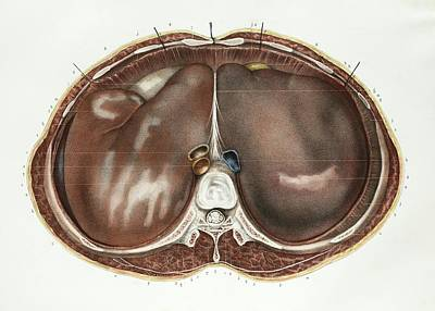 Liver Poster