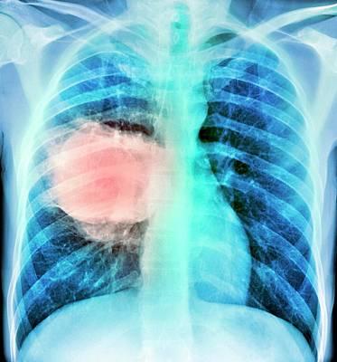 Lung Cancer Poster by Du Cane Medical Imaging Ltd