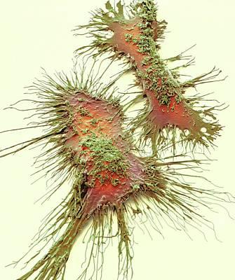 Microglia Poster