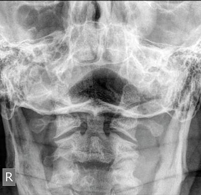 Normal Cervical Spine X-ray Poster by Photostock-israel